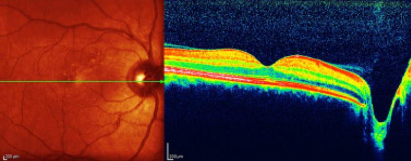 Centralna surowicza retinopatia_po laserowaniu