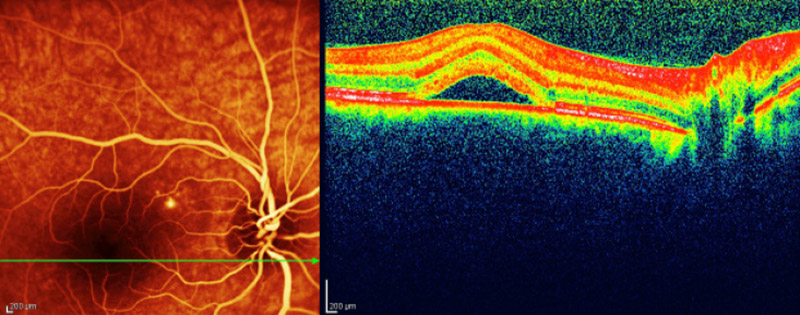 Centralna surowicza retinopatia_przed laserowaniem