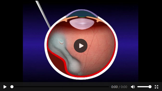 Film okulistyczny OFFISS for microsurgical scleral buckling