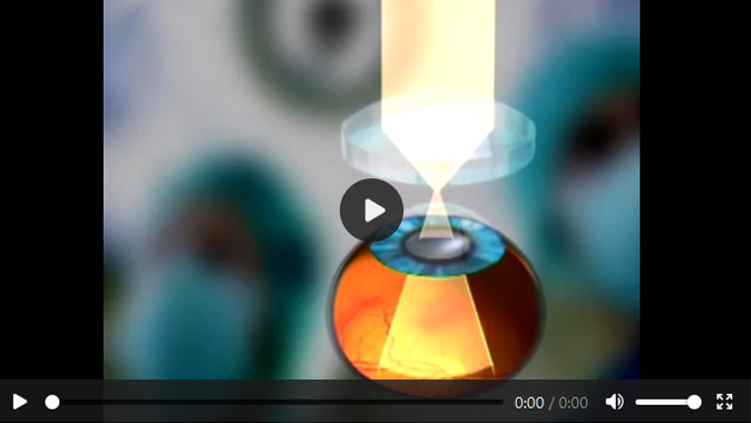 Film okulistyczny The use of different illumination