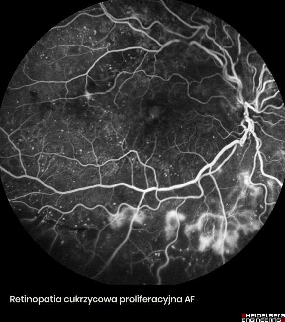 HEIDELBERG ENGINEERING retinopatia cukrzycowa proliferacyjna-AF