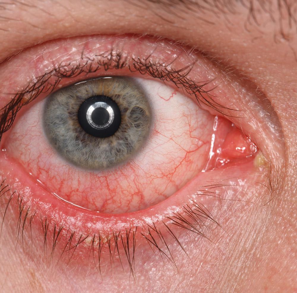 stanu zapalnego oka