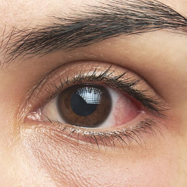 ból i częste zaczerwienienia oczu