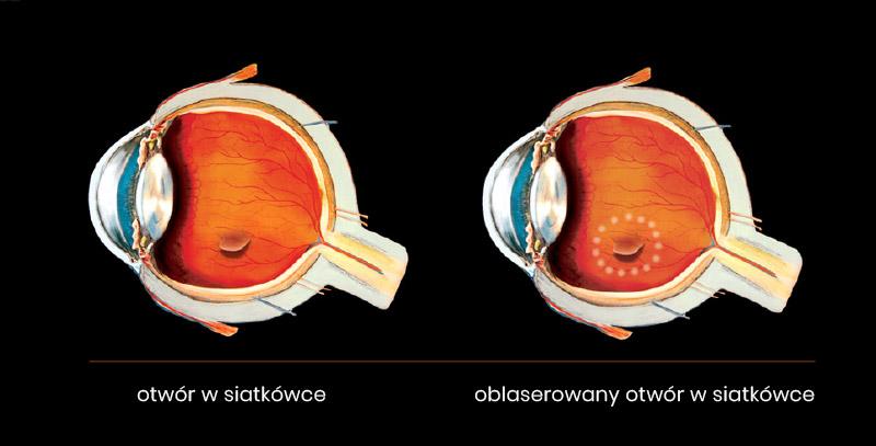 oblaserowany otwór w siatkówce